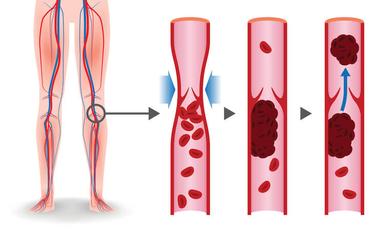 血栓 コロナ ウイルス